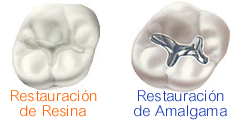 Cosmetic Dental Restoration